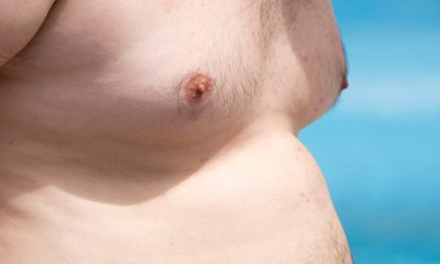 CoolSculpting for Men in Fairfax Virginia