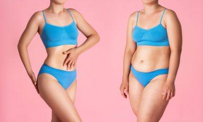 "If you have been struggling to lose those last few pounds of fat despite a dedicated diet and exercise routine, you might be asking yourself the question ""where can I find affordable liposuction?"""