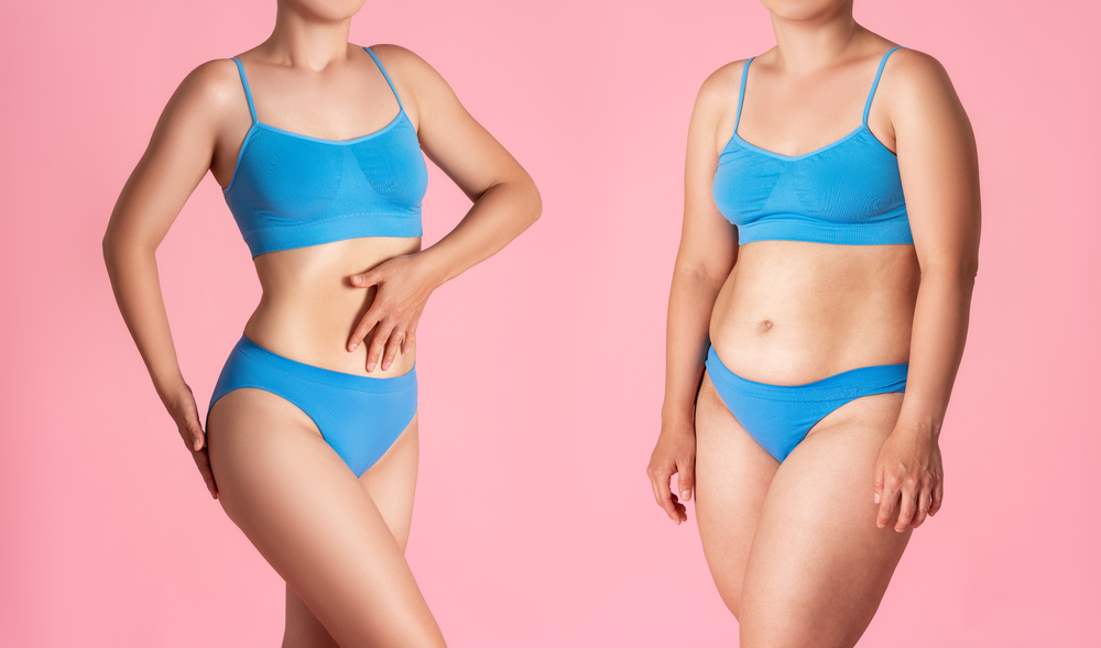 """If you have been struggling to lose those last few pounds of fat despite a dedicated diet and exercise routine, you might be asking yourself the question """"where can I find affordable liposuction?"""""""