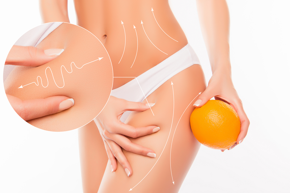 Qwo Cellulite Reduction Injections Work?